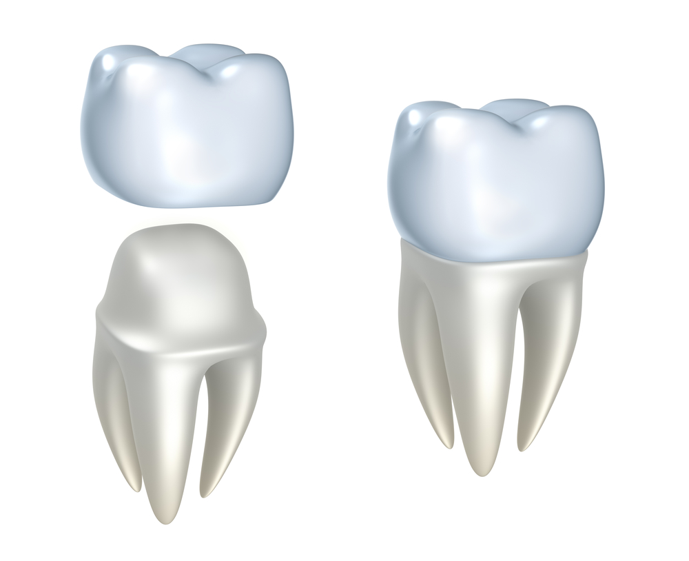 Where can I get Dental Crowns in Jupiter Fl?