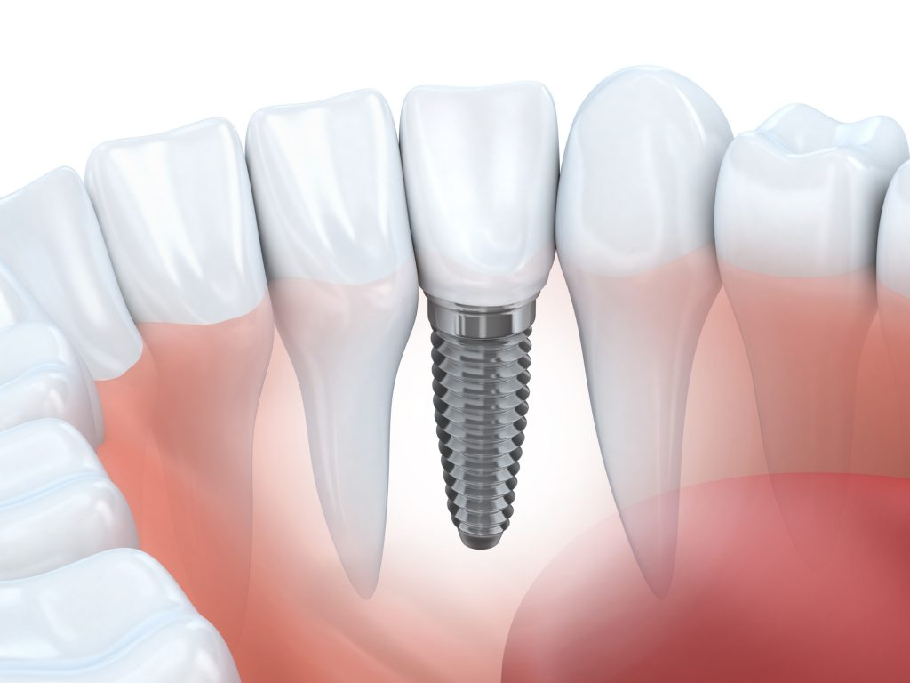 Where can I get Dental Implants in Juno Beach Fl ?