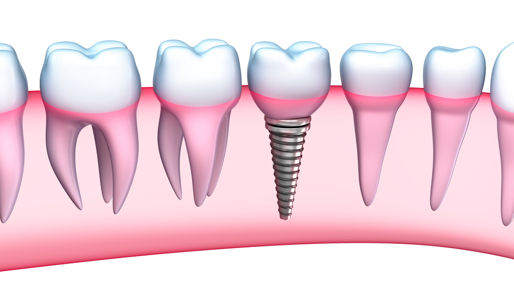 Who is the best dentist for Dental Implants in Juno Beach Fl ?