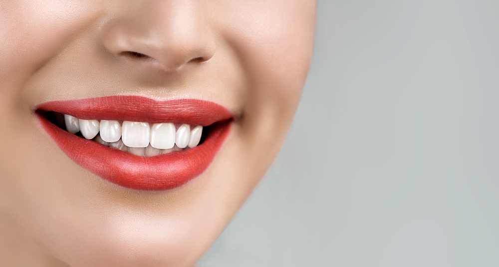 Who is the best dentist for Veneers in Jupiter Fl ?