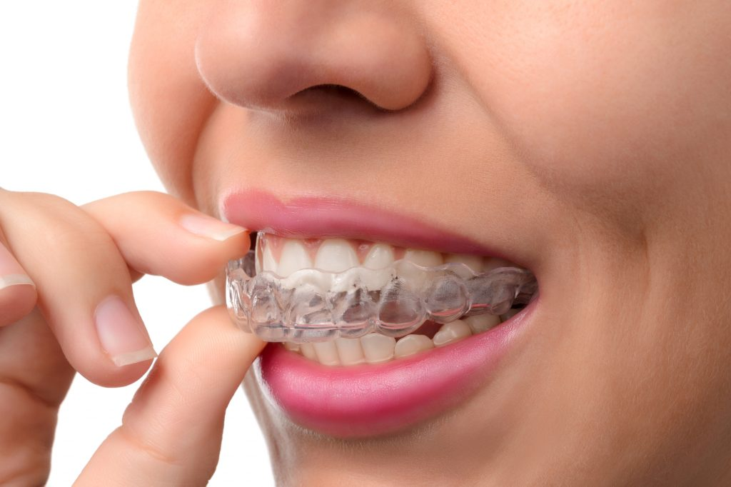 Where can I find Invisalign in Juno Beach Fl ?