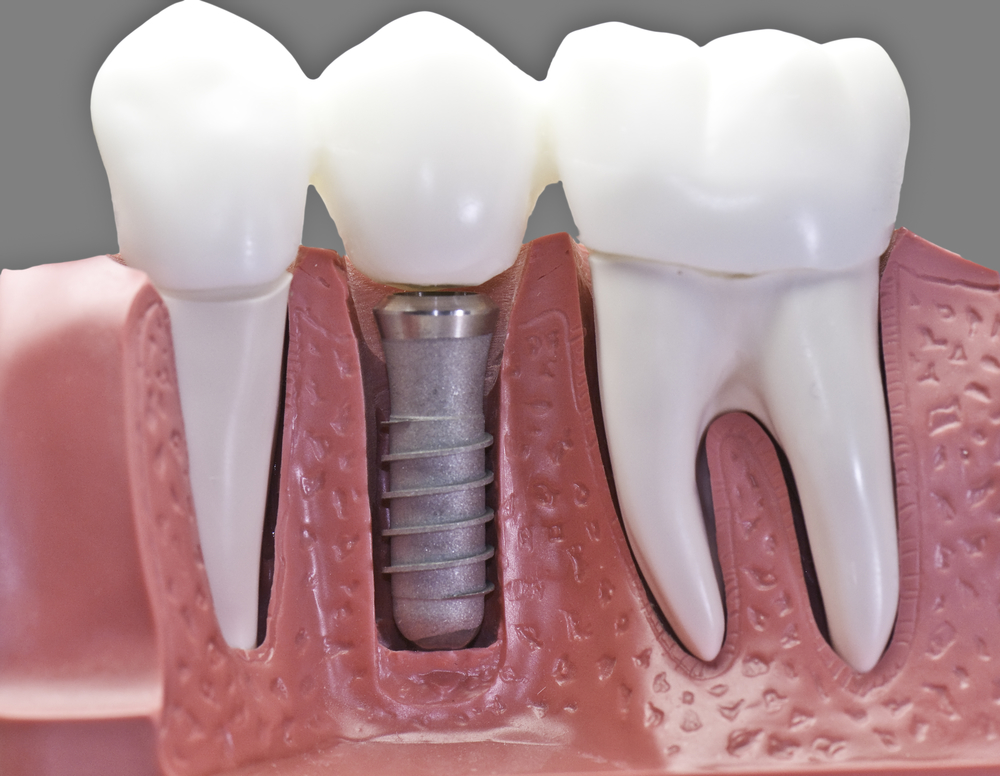 Where can I find Dental Implants in Jupiter?