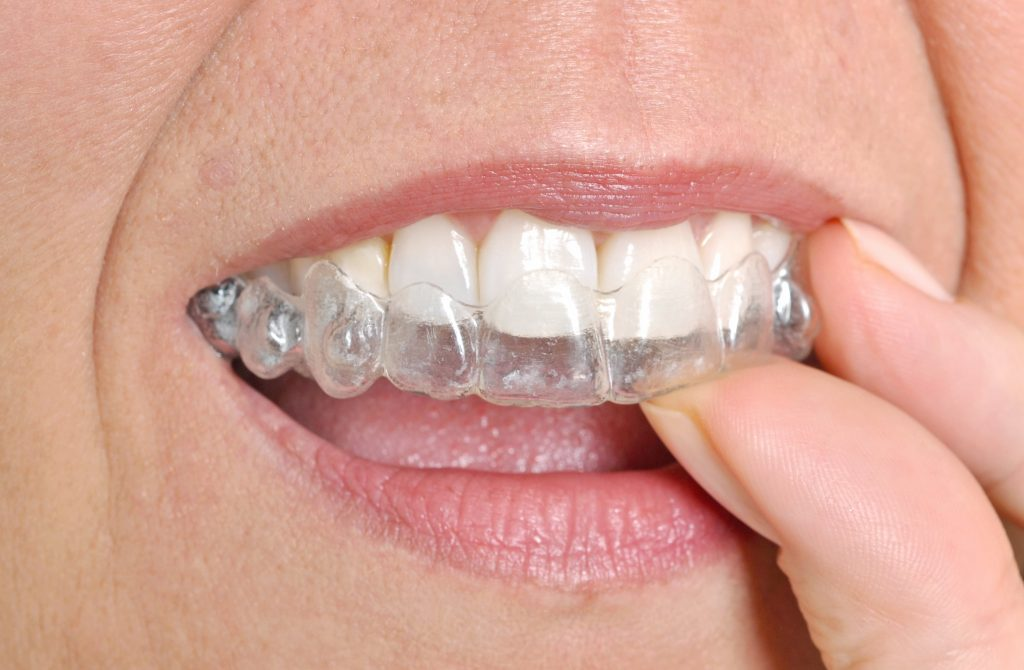 Am I too old for Invisalign?